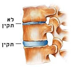 כאבי גב, שחרור הלחץ