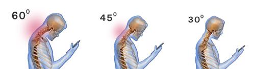 כאבי צוואר סלולריים